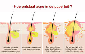 acne in de puberteit